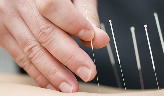 Lääketieteellinen akupunktio
